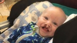5-Month-Old Baby With Cleft Palate Smiles for First Time as Mom Documents Struggle
