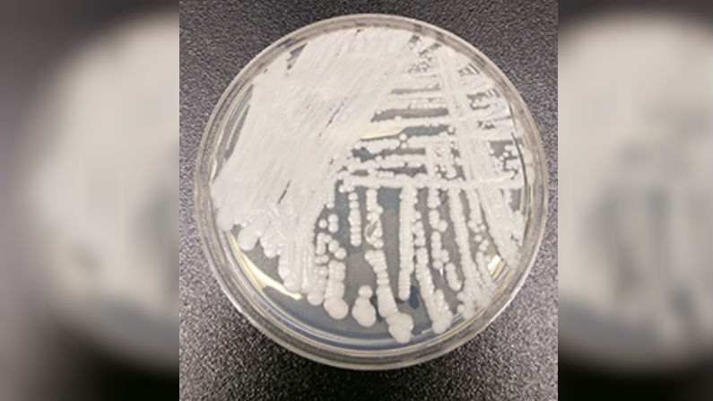 A strain of Candida auris cultured in a petri dish at a CDC laboratory.(Shawn Lockhart/Centers for Disease Control