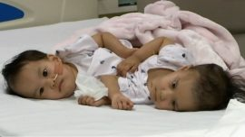 Surgeons Succeed in Separating Conjoined Twins in Hours-Long Operation