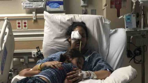 Arizona Woman Loses Her Eyes and Part of Brain to Fungal Infection