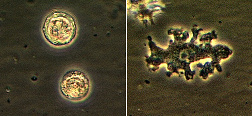 Doctor Issues Warning After Rare Brain-Eating Amoebas Kill Seattle Woman