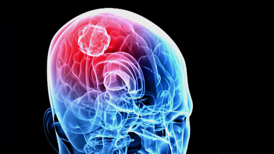 Nurse Diagnoses Her Own Brain Tumor in 2018 After Seeing Poster at Work