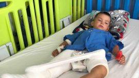 Insurers Refuse to Pay for Stranded Family's Flight After Boy's Leg Breaks, Stranger Steps In