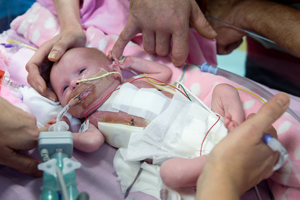 Baby Born With Heart Outside Her Chest Heads Home Against the Odds