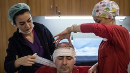 43-Year-Old Man Dies After Hair Transplant in India