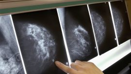 A California Teacher on Medical Leave for Breast Cancer Has to Pay for Her Substitute
