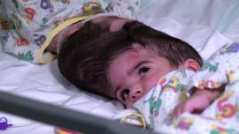 Sisters Conjoined at the Head Are Separated After 50 Hours of Surgery