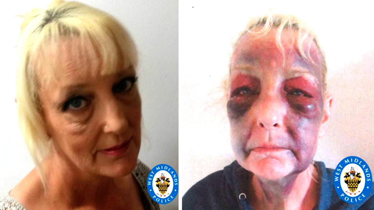 Lynn Hart abused