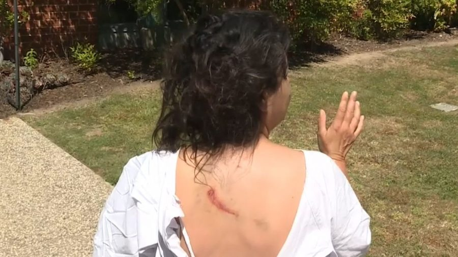 Woman Gets Mauled by Large Kangaroo While Walking Her Dog in Australia